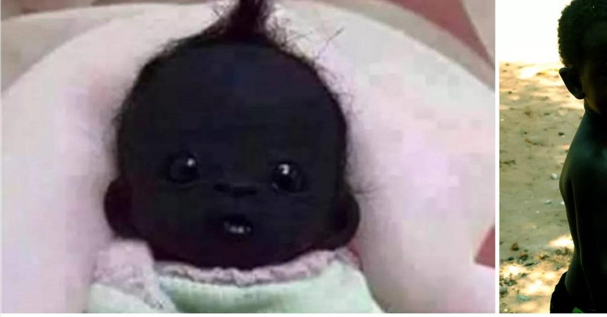 Así luce el niño más negro del mundo en la actualidad, simplemente hermoso !